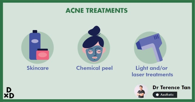 The Ultimate Guide to Acne Treatments in Singapore (2020)