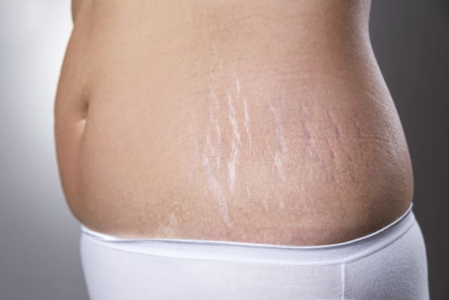 The Essential Guide to Stretch Mark Treatment in Singapore (2020)