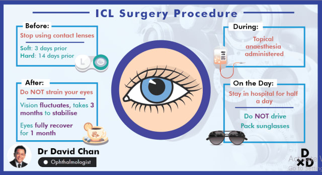 The Complete Guide to Implantable Contact Lens (ICL) Surgery in Singapore (2020)