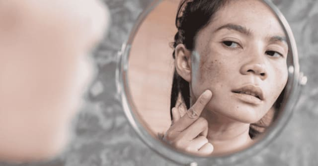 The Essential Guide to Melasma Treatment in Singapore (2020)