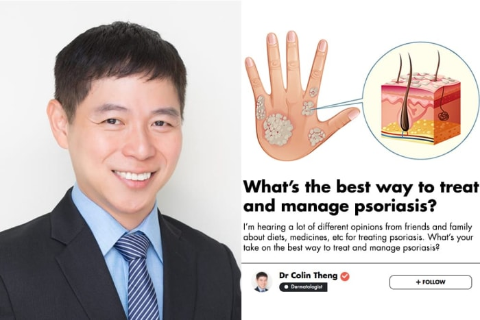 How to treat persistent blisters on the hands due to