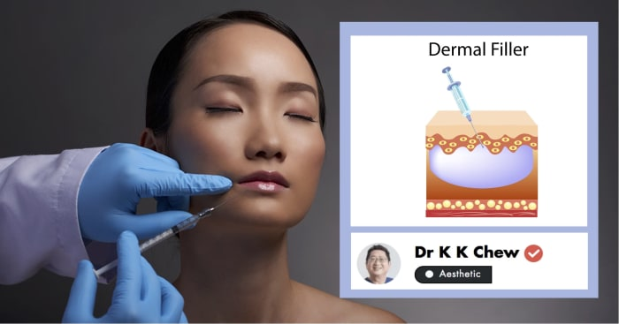 An Aesthetic Doctor's Guide to Non-Surgical Facelifts In