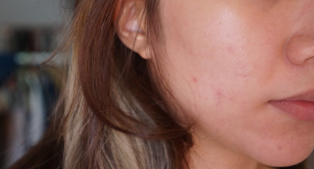 Battling acne and saggy skin with Dr Lee 5a7272f77cb7f3005838749f