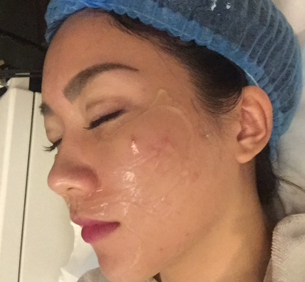 Battling acne and saggy skin with Dr Lee 5a7273027cb7f300583874a0