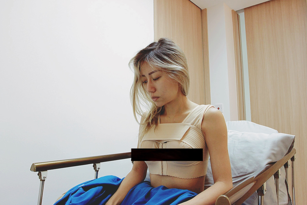 Breast augmentation with Allure and Dr Samuel Ho 5a727aaf7cb7f300583874a8