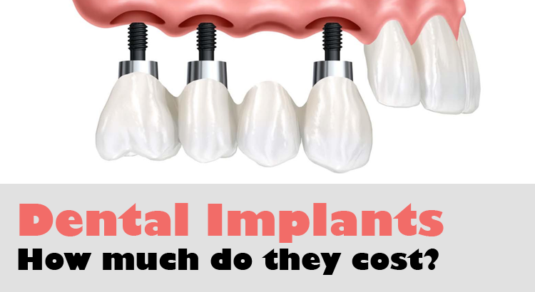 Dental Implant Costs In Singapore A Dentist Tells All