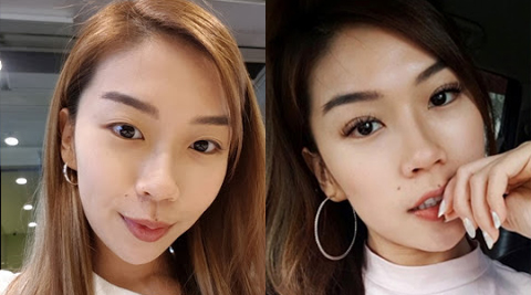 Best Plastic Surgeon in Singapore for Double Eyelids 5a79190532368d0073284259