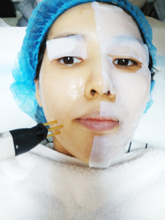 NeoGen Plasma Facial - Dr Lee Mun Heng of Cambridge Medical 5a84fcc752189b0078fed479