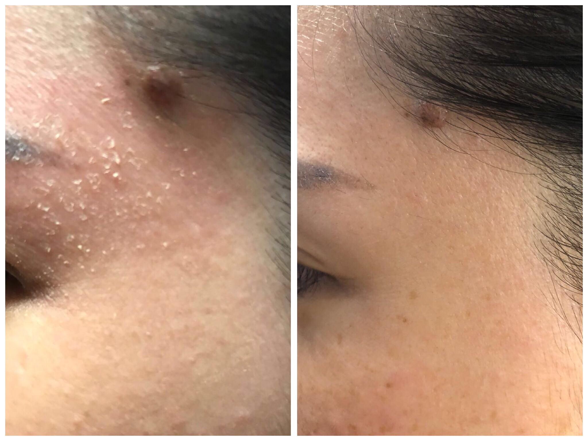 Rejuran for Dry Skin  5a97a1deb8a740004dfa574d
