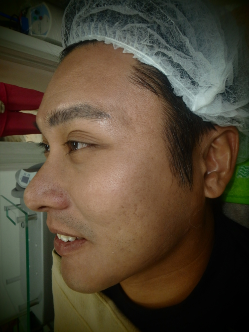 Acne Scars Improved with Rejuran Healer and CO2 Laser 5ab2016be9e2900074ac38df