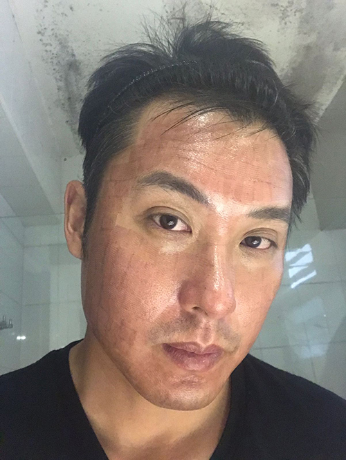 Acne Scars Improved with Rejuran Healer and CO2 Laser 5ab2016be9e2900074ac38de