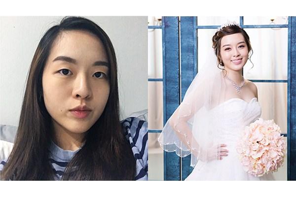 Glad I trusted Dr Samuel Ho for double eyelids surgery 5aced127e8baf0004ccea94e