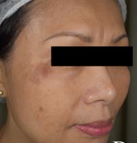 Post Inflammatory Hyperpigmentation (PIH)