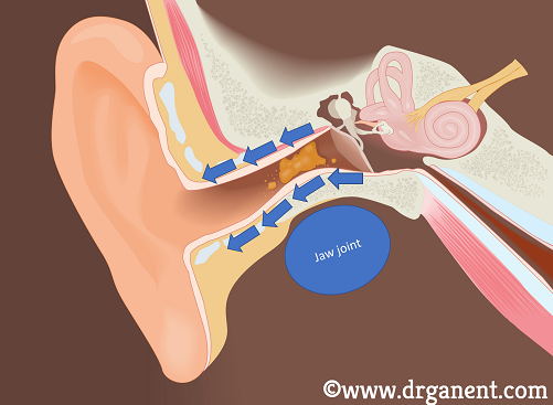 earwax removal singapore