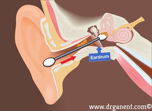 earwax singapore