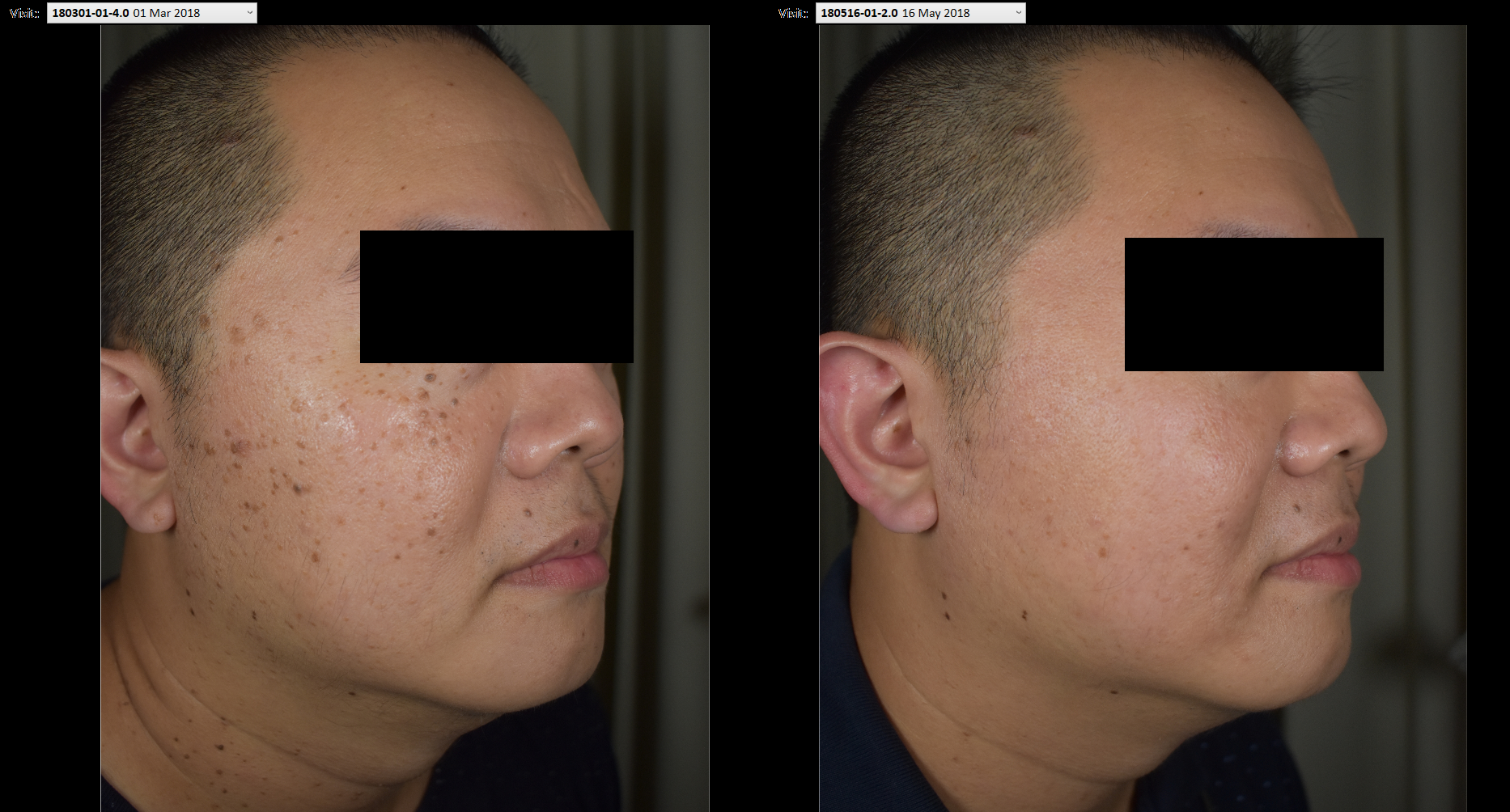 Effective Treatment for Kerotosis or 老人斑 in a comfortable environment 5b46186b3096e600502278bb