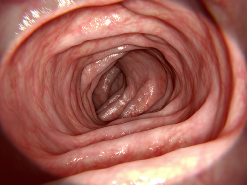 colonoscopy Singapore