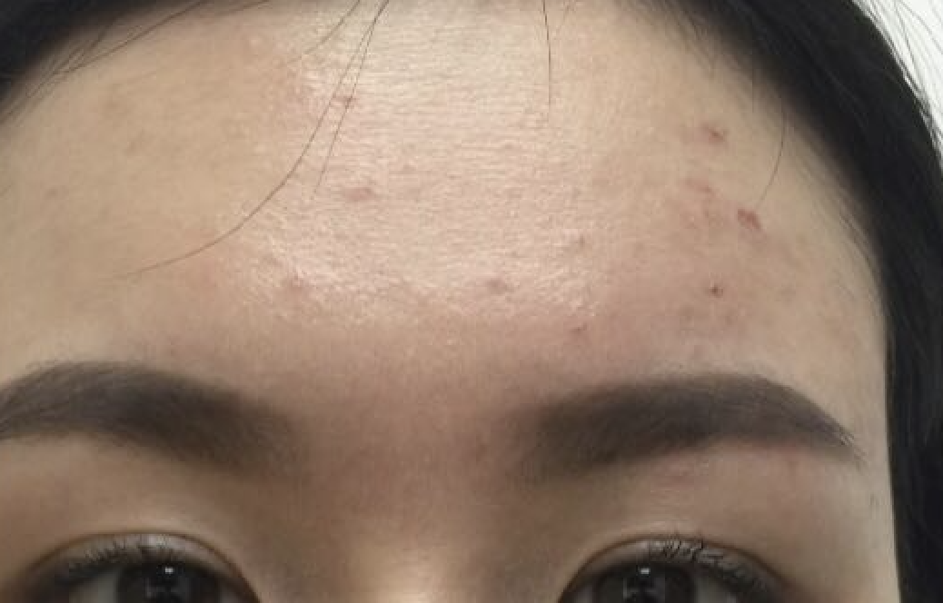 Adult Acne Resolved! 5b5155498bd435004f37a81d