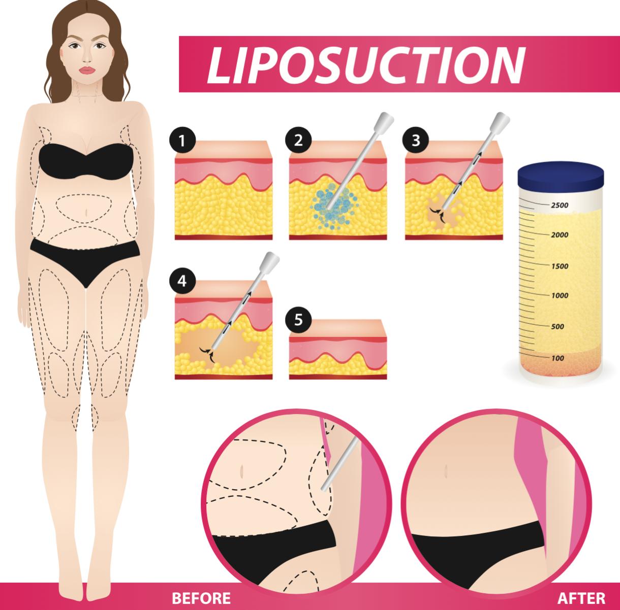 liposuction procedure in Singapore