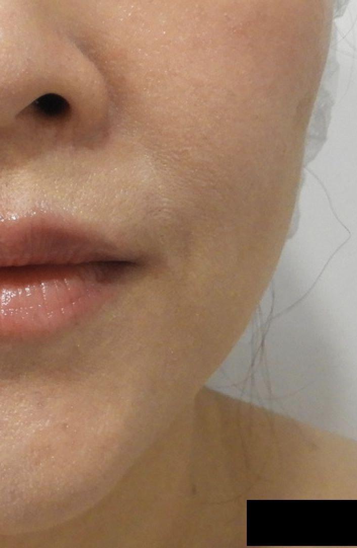 HIFU Ultraformer + Botox results 5b7ced77d2fbdf004d1ad43a