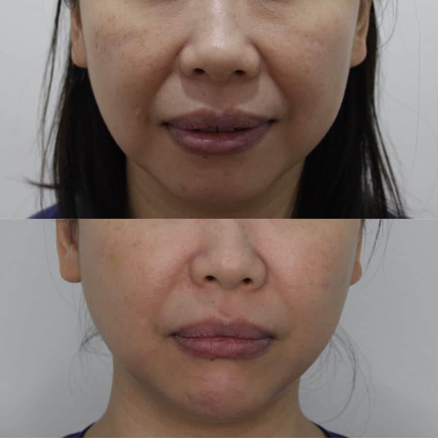 I love my natural results! 5ba11510a5a80c004febd28c