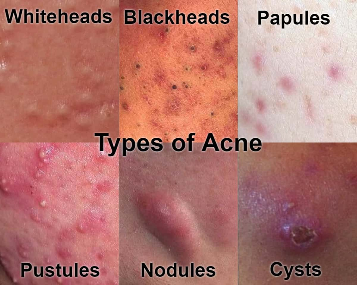 Where Can I Seek Treatment For Cystic Acne In Singapore What Is The Best Cystic Acne Treatment