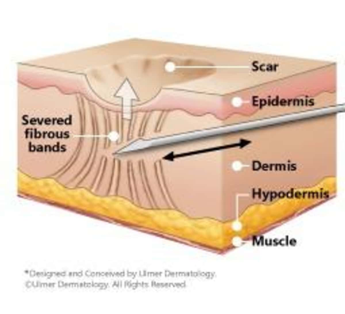 Subcision for deep acne scars
