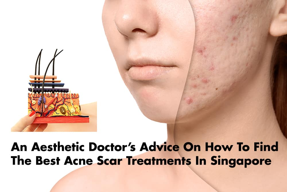 An Aesthetic Doctor Reviews Acne Scar Removal Treatments In