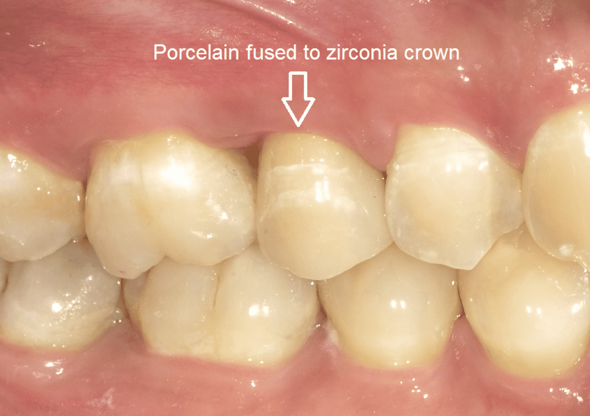 What kinds of crowns may be used for an upper premolar (fifth