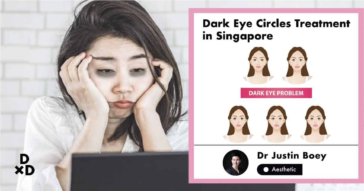 The Ultimate Guide To Dark Eye Circle Treatments In Singapore 2020