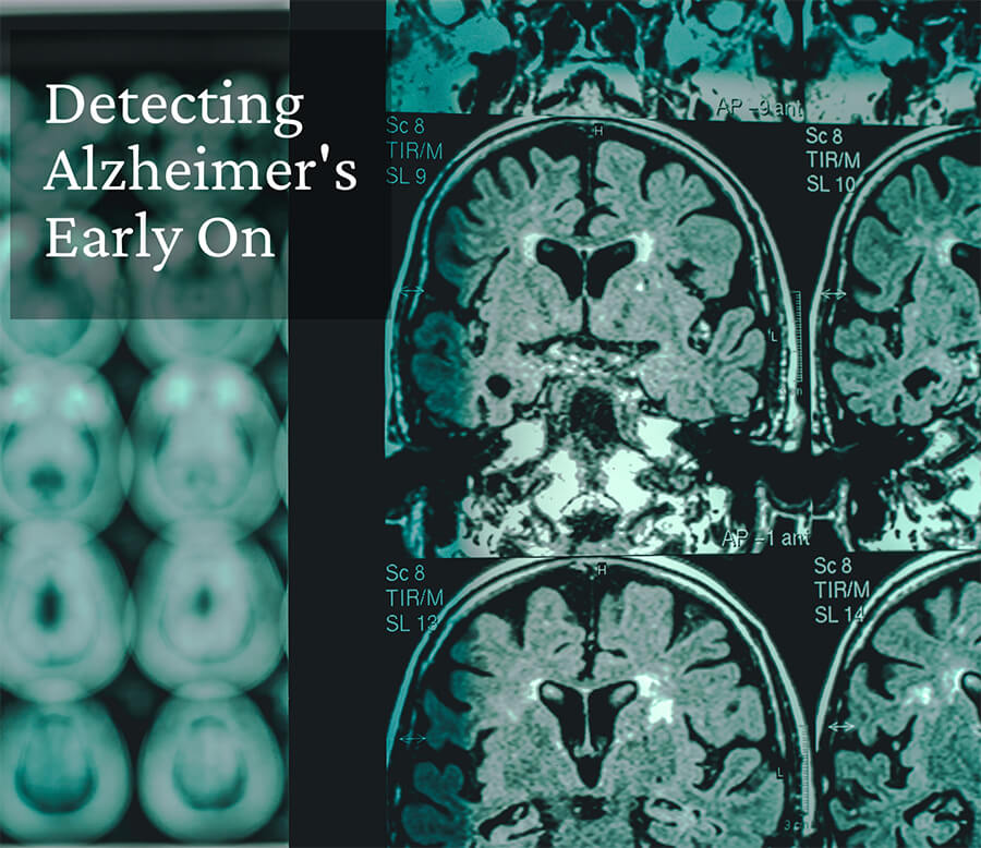 Catch It Early, Save a Mind: Fluid Markers Can Help in the Early Detection of Alzheimer's