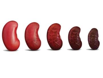Kidney-Disease-Treatment
