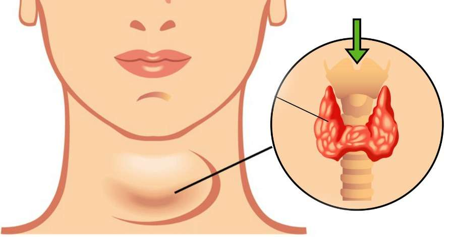 Hypothyroidism Treatment in Delhi