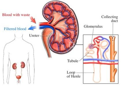 IgA Nephropathy Treatment in Delhi