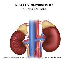 diabetic-kidney-disease