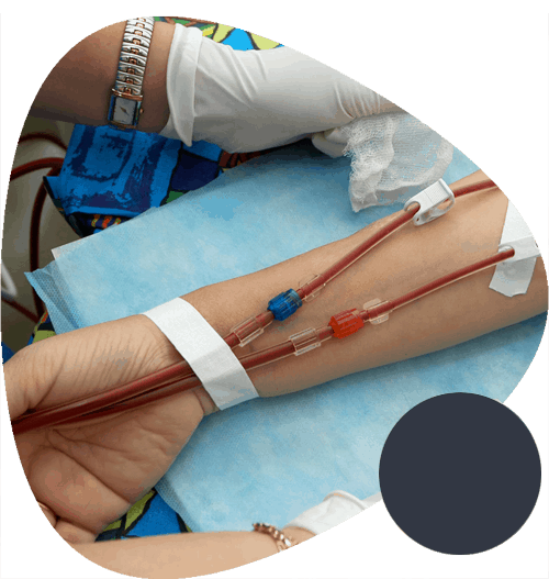 Dialysis-in-delhi