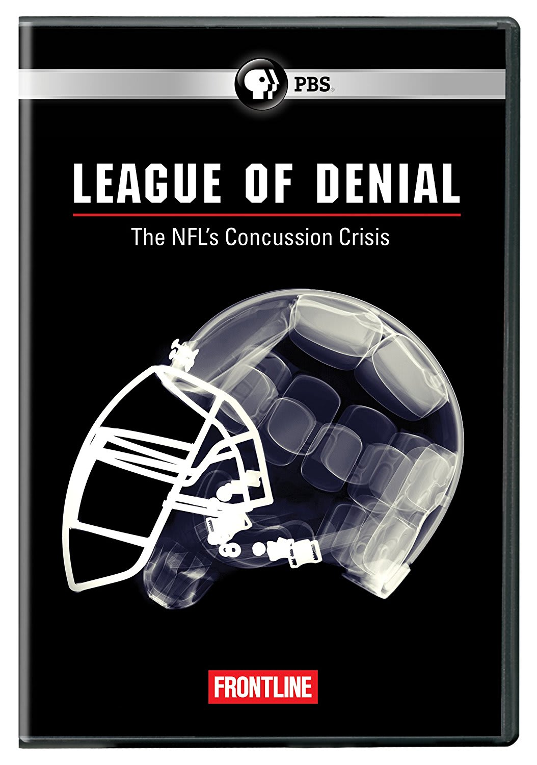 Frontline: League of Denial: The NFL's Concussion Crisis  [DVD]