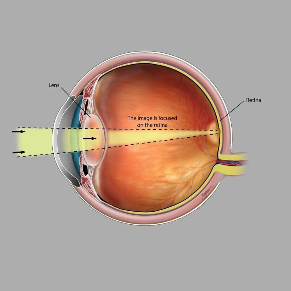 Normal Vision - Myopia