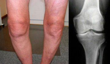 Односторонній або двосторонній гонартроз колінного суглоба: код за МКХ-10, симптоми правобічної чи лівобічної форми, лікування