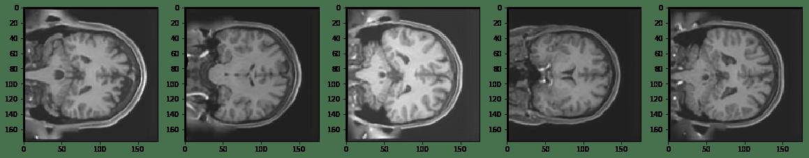 Reconstructing Brain MRI Images (article) - DataCamp