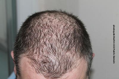 Haartransplantationen haben keine medizinische Notwendigkeit, sind aber gut für das Selbstbewusstsein.
