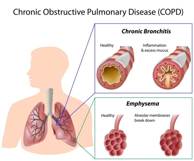 COPD information graphic