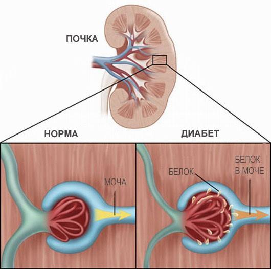Діабетична нефропатія: причини, симптоми, лікування