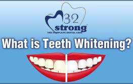What is Teeth Whitening