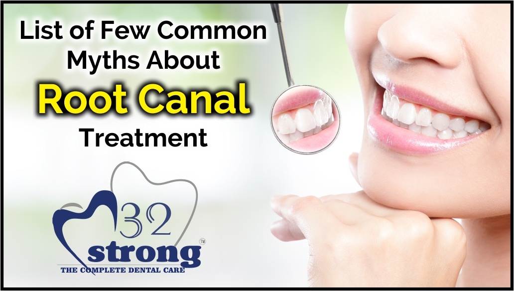 List of Few Common Myths About Root Canal Treatment