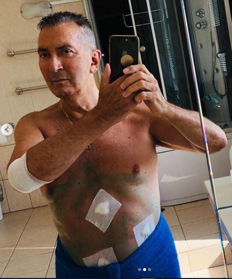 Александр Буйнов с проколами на животе показался после операции: