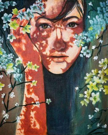 Vitiligo by @paintartica