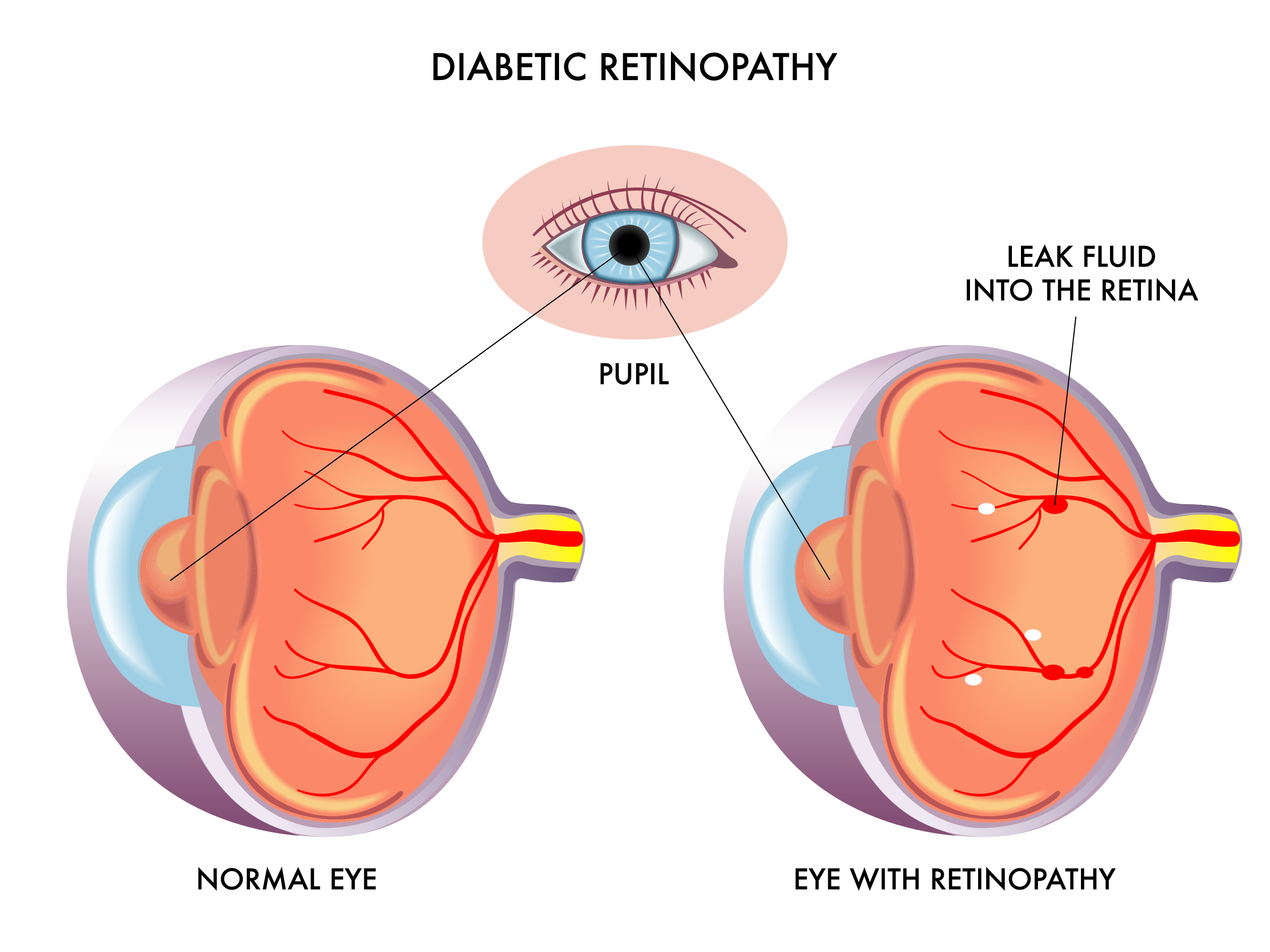 Optic Nerve Dr Jinesh Shah