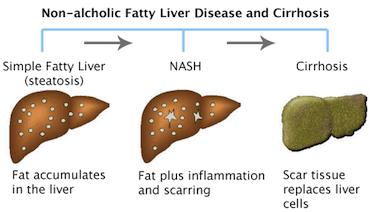 Fatty Liver (NAFLD) (ફેટી લીવર) - Konect Health