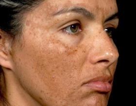 Skin Lightening Guide: The Basics